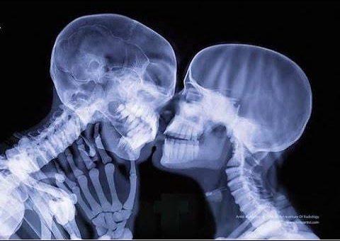 Röntgende İnsanların Canlı Görüntüsü