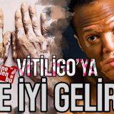 vitiligoya ne iyi gelir